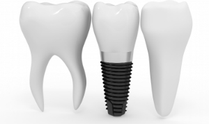 dental implant_edit2