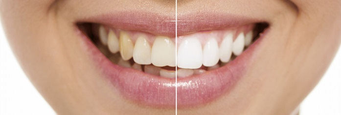 dentist-teeth-whitening-edit.jpg