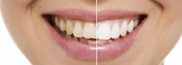 dentist-teeth-whitening-700x251.jpg