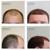 Natural Transplant, Hair Restoration Clinic