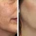 Derma Enhancement