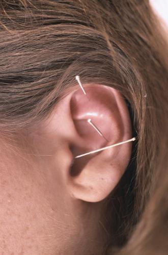 Acupuncture_3