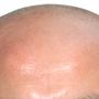 La Jolla Hair Clinic Inc.