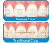 Damon System Tie-less Braces
