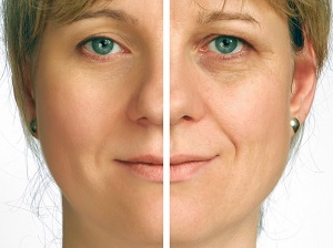Spider Vein Treatment, Botox, Cosmetic Surgery, Laser Treatments, Brest Implants, 3