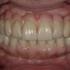 Prettau Implant Center - CLOSED