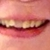 Gulfview Dental