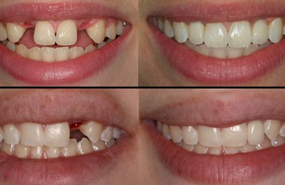 Miracle Smile Dentistry - Coral Gables, FL. Dental Implants before and after www.miracle-smile.com  305-569-9966