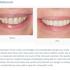 Bozeman Dentistry
