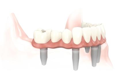 Bright Smile Design Dental - New York, NY