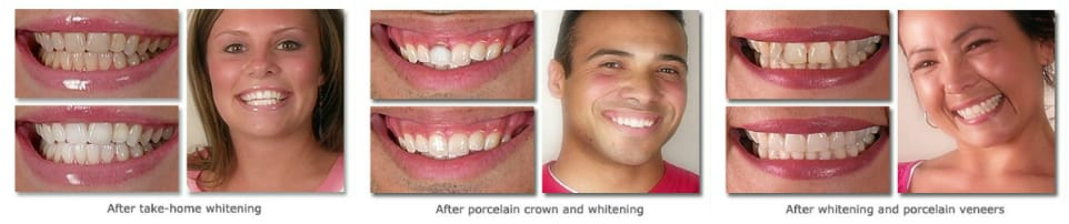 Improve Your Smile Today. Implant & General Dentistry - Cary