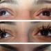 las vegas laser skin care