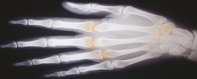 Arthritis Cent West Palm-Main2.jpg