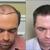 Hair Restoration Specialists