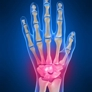 Dr. Jeffrey E. Budoff, MD - Orthopedic Hand Surgeon - Houston, TX