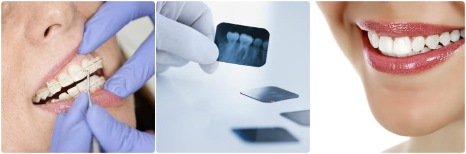 dental_main