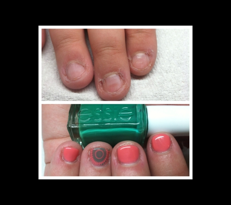 Andres' Day Spa & Gifts - Henrico, VA. Before and after