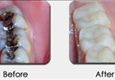 GentleCare Dentistry LLC - Germantown, MD