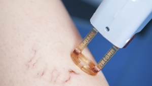 skin laser treatment