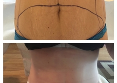 CG Cosmetic Surgery - Miami, FL. Two weeks out of surgery!