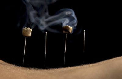Awakening Balance Acupuncture - Northglenn, CO. Moxibustion