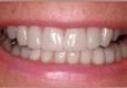 Milford Smiles - Milford, MA