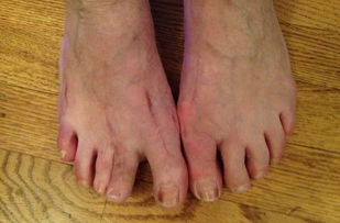 """Dr. Matteucci said my toes only """"looked crooked.""""  If you don't want results like this, go to another physician."""
