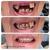 EZ Smile Family Dental Group