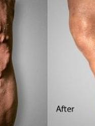 Advanced Varicose Vein Treatments of Manhattan