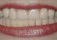 Lonier Family Dentistry DDS, PLLC - Okemos, MI