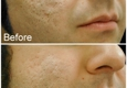 About Face Cosmetic Therapy Center - Columbus, OH