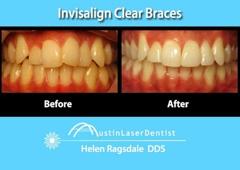 Austin Laser Dentist - Helen Ragsdale DDS - Austin, TX