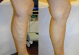 Vein & Laser Center - Dr. Saeed Darbandi - Joliet, IL. Before & After