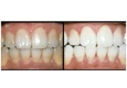 Emergency Dental DDS - Lantana, FL