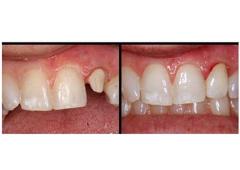 Emergency Dental DDS - Pompano Beach, FL