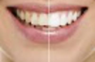 Palisades Dental - American Fork, UT