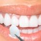 Mira Mesa Dental Care - San Diego, CA