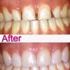 Roya Zandparsa, DDS, Msc, DMD @ Royal Dental Boston
