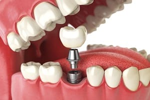 Deantal implant