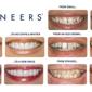 Salazar Family Dental - Indianapolis, IN