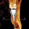 Lakes Oral & Maxillofacial Surgery/Dr. Jeffrey S. Cohen, DDS