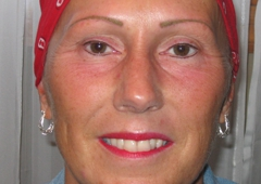 FACES by Marcia Renner BS, LPN, FAAM, CPCP Permanent Cosmetic Makeup - Kansas City, MO