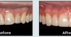 Pannell, Keith DDS - White Oak, TX