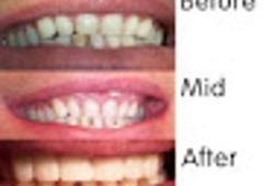 Advanced Dental Technology of Ithaca II PLLC: Marcia S. Zax, DDS - Ithaca, NY