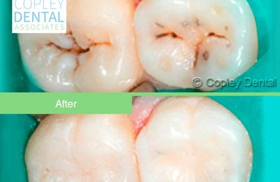 Copley Dental Associates - Boston, MA. #cosmeticdentist