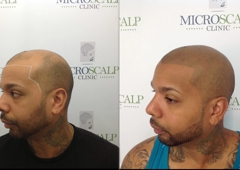 Micro Scalp Clinic - Boston, MA