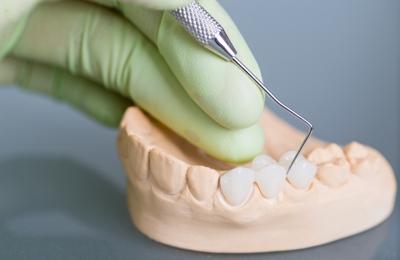 Dentist Expert - Utica, NY